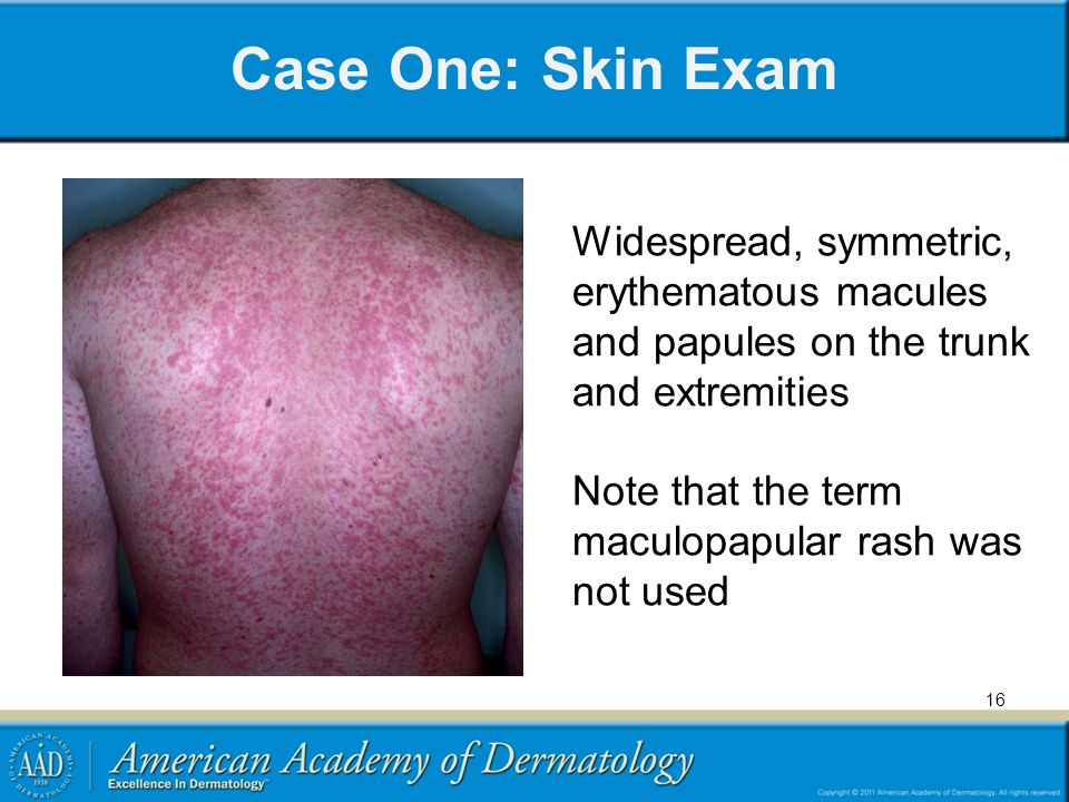 Case One: Skin Exam Widespread, symmetric, erythematous macules and papules on the trunk and extremities.