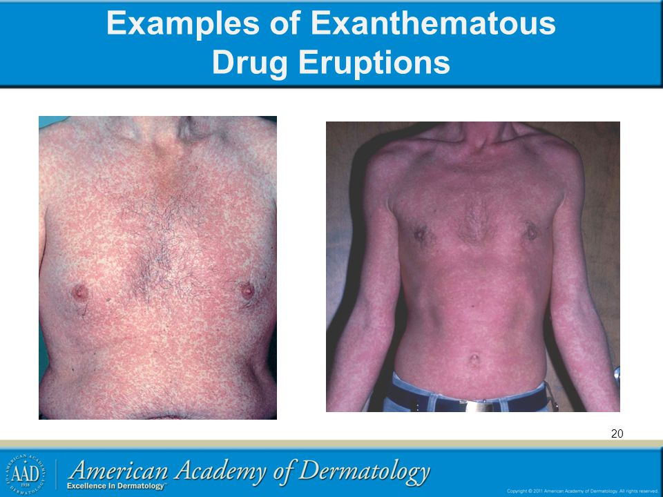 Examples of Exanthematous Drug Eruptions