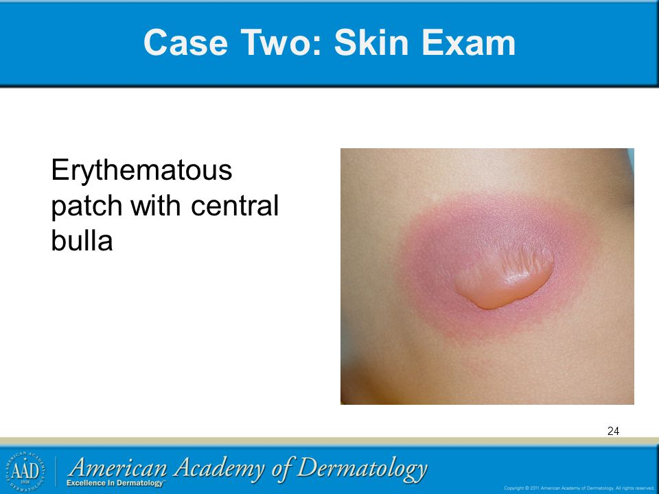 Case Two: Skin Exam Erythematous patch with central bulla