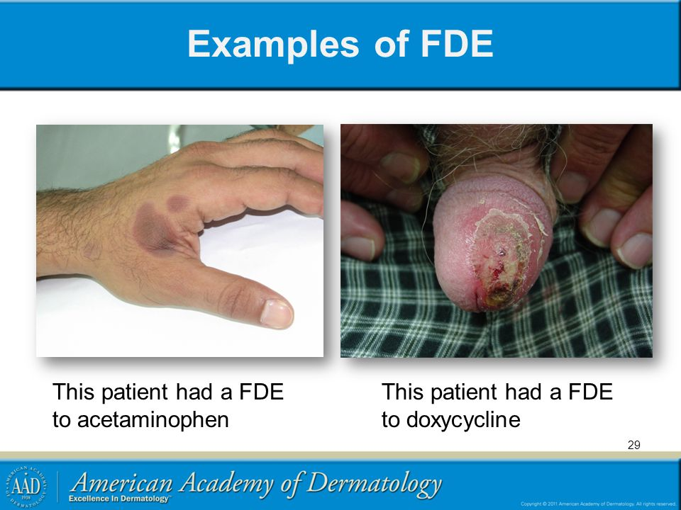 Examples of FDE This patient had a FDE to acetaminophen
