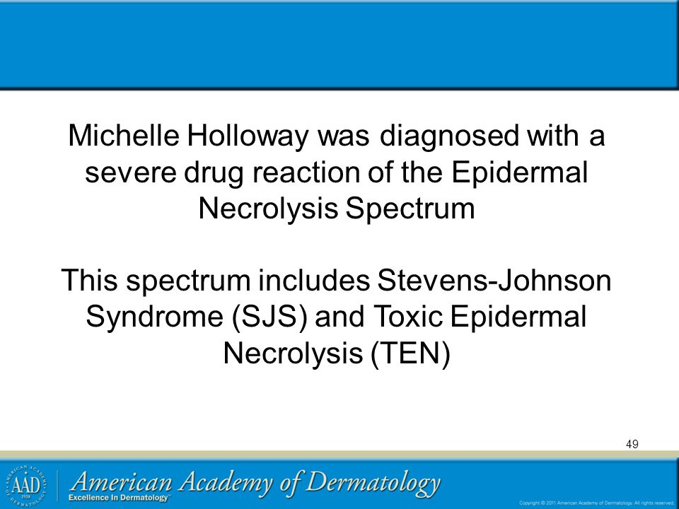 Michelle Holloway was diagnosed with a severe drug reaction of the Epidermal Necrolysis Spectrum This spectrum includes Stevens-Johnson Syndrome (SJS) and Toxic Epidermal Necrolysis (TEN)