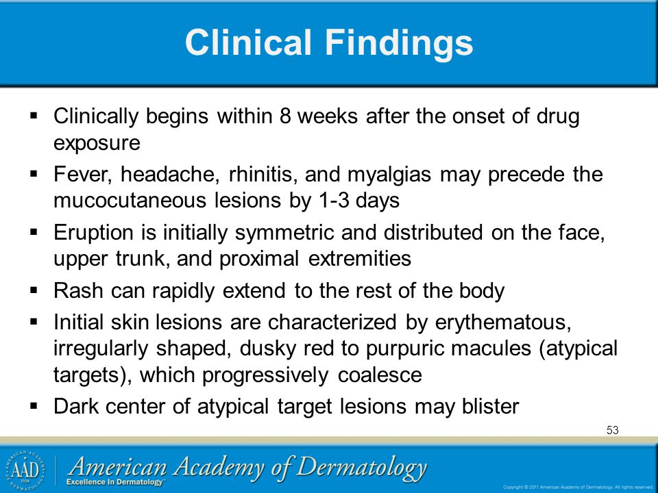 Clinical Findings Clinically begins within 8 weeks after the onset of drug exposure.