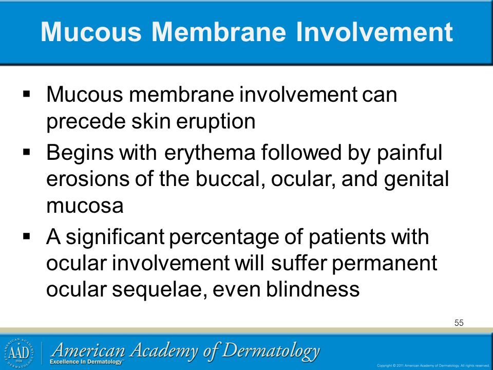 Mucous Membrane Involvement