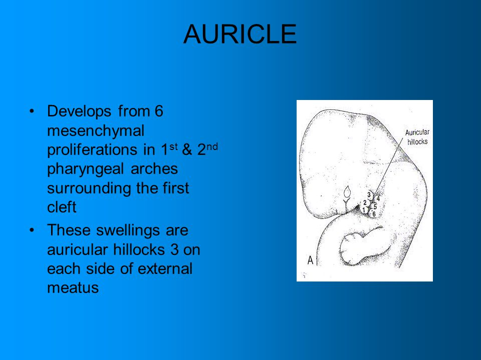AURICLE Develops from 6 mesenchymal proliferations in 1st & 2nd pharyngeal arches surrounding the first cleft.