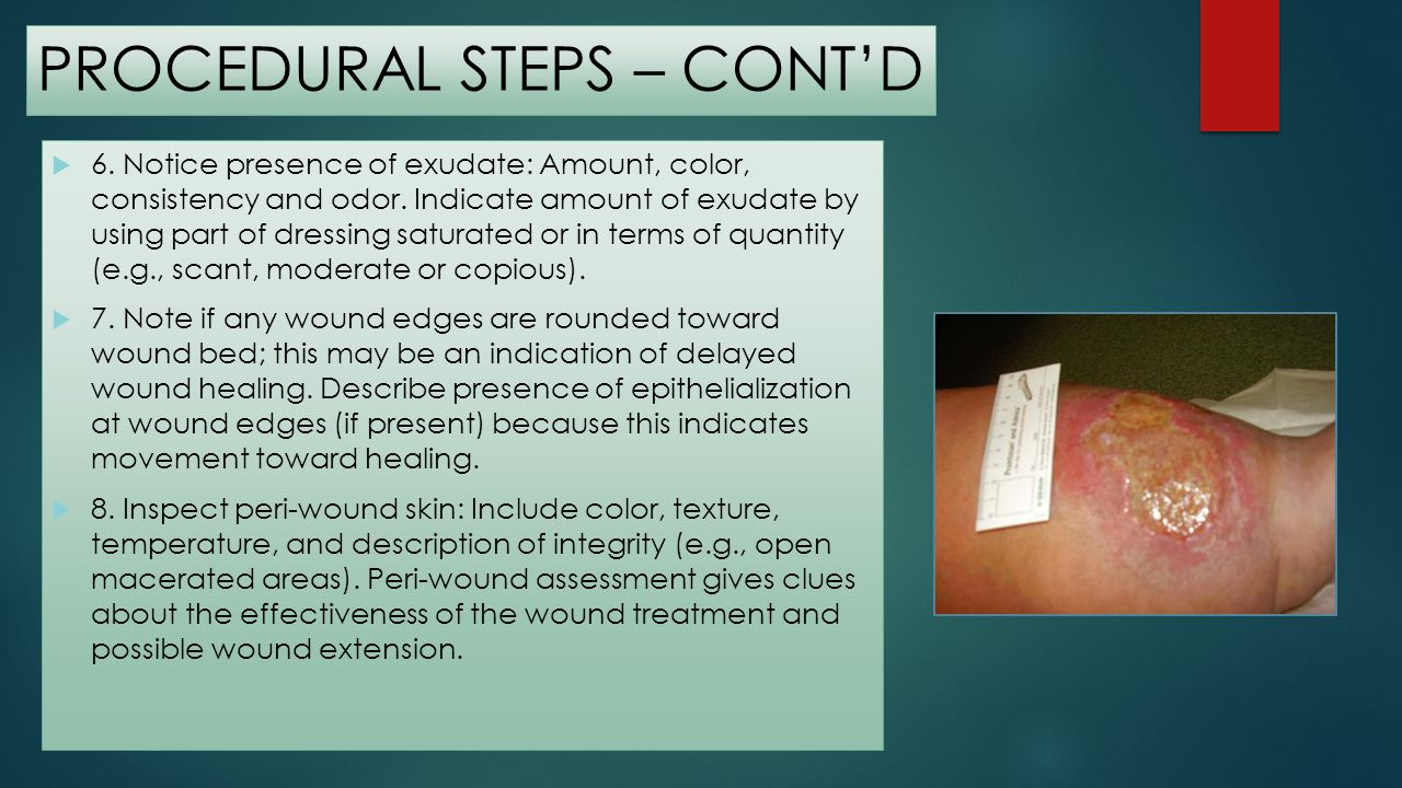 PROCEDURAL STEPS – CONT'D
