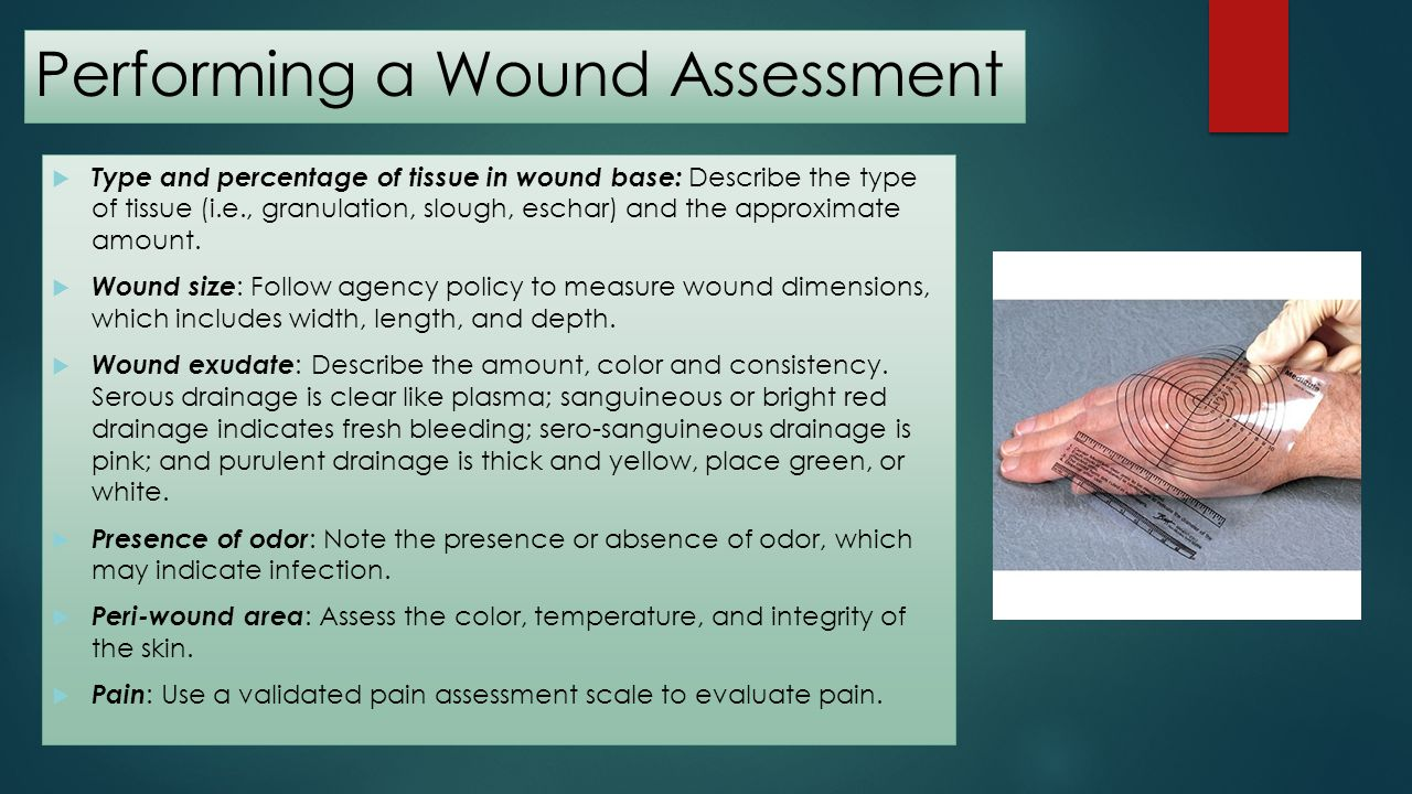 Performing a Wound Assessment