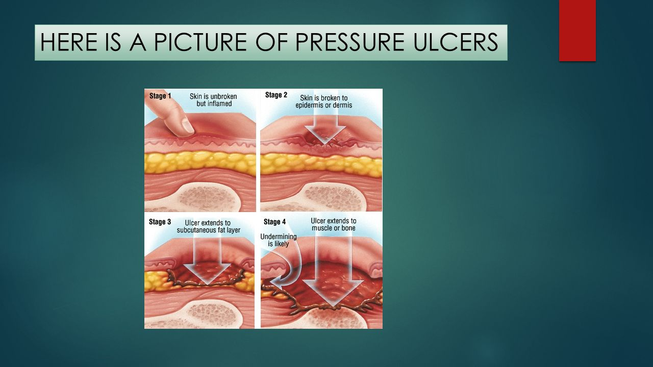 HERE IS A PICTURE OF PRESSURE ULCERS