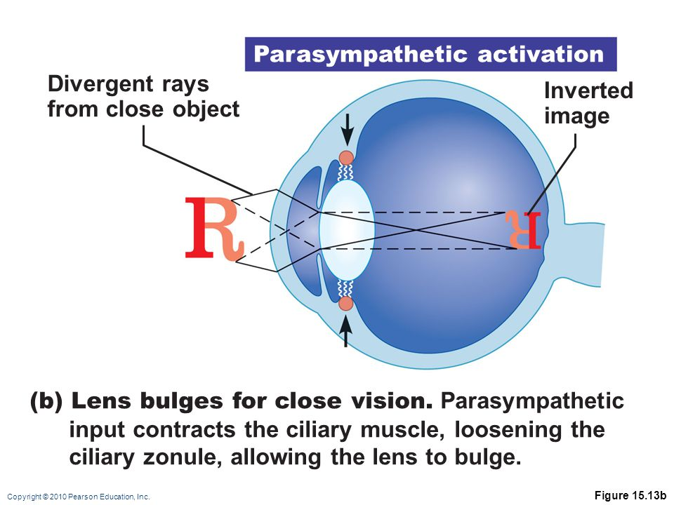 Parasympathetic activation Divergent rays from close object Inverted