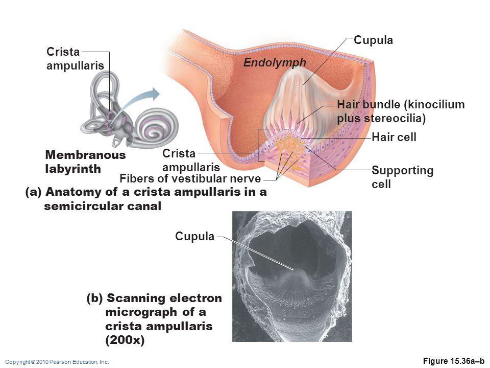 Hair bundle (kinocilium plus stereocilia)