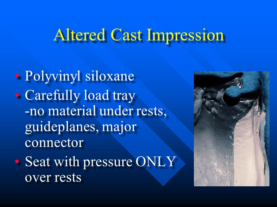 Altered Cast Impression