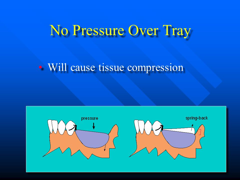 No Pressure Over Tray Will cause tissue compression