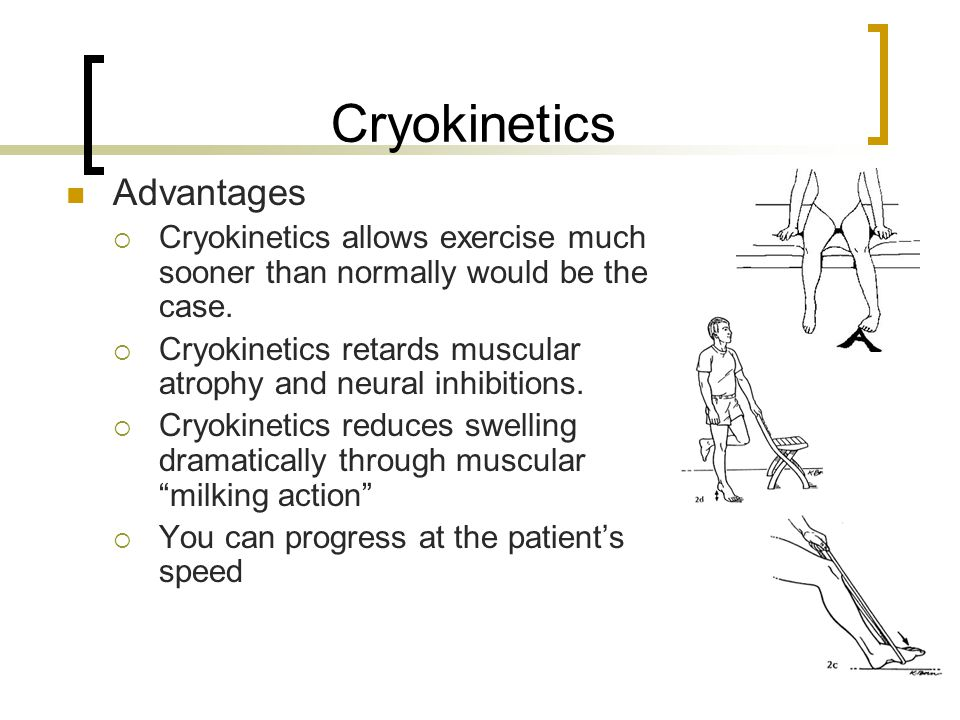 Cryokinetics Advantages
