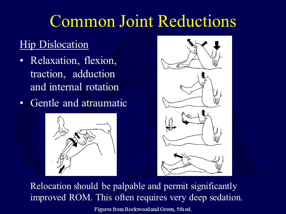 Common Joint Reductions