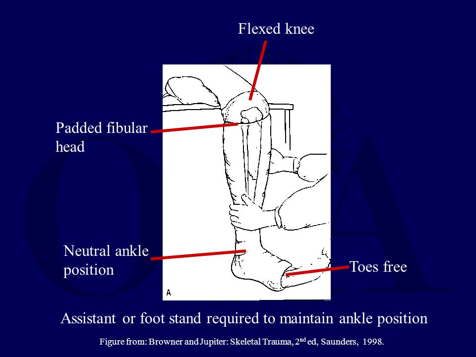 Assistant or foot stand required to maintain ankle position