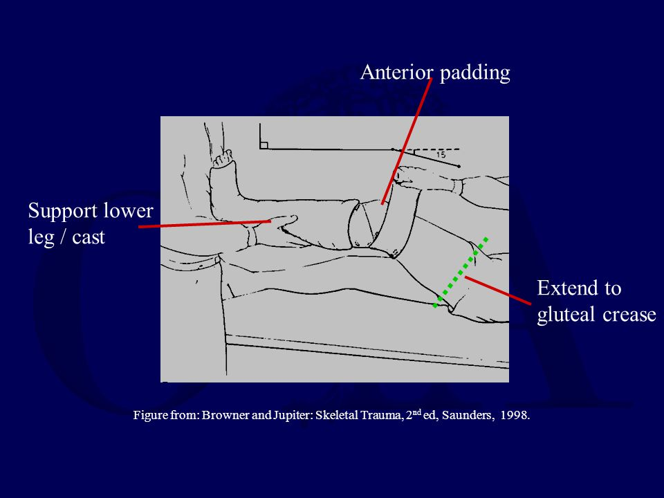 Anterior padding Support lower leg / cast Extend to gluteal crease