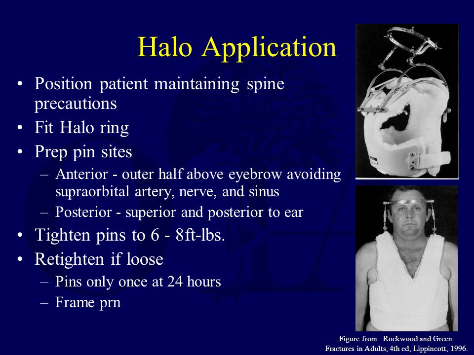 Halo Application Position patient maintaining spine precautions