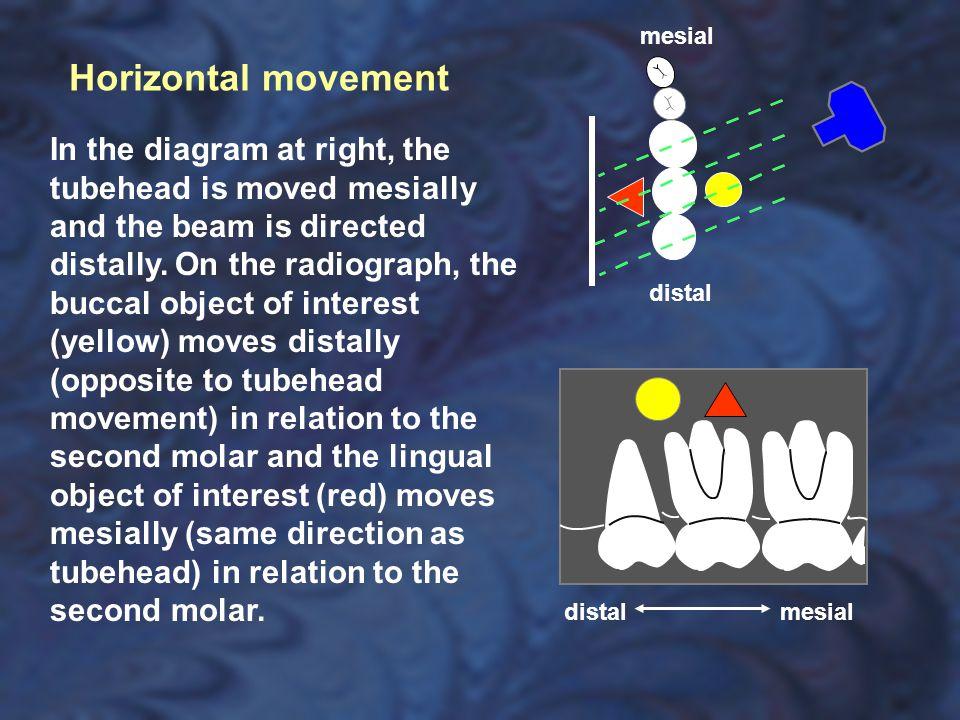 mesial Horizontal movement.