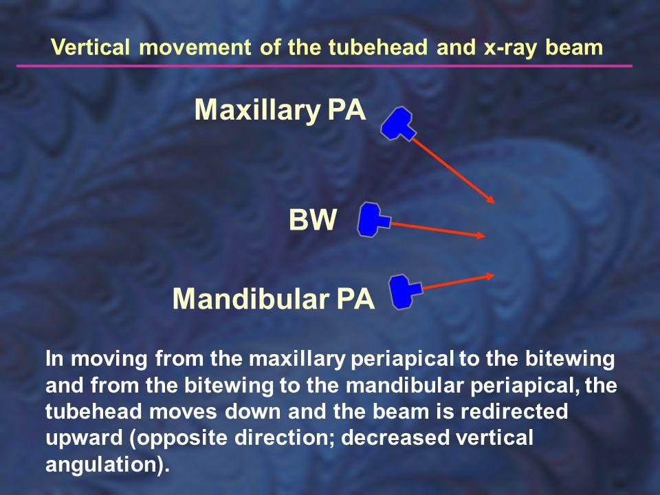 Maxillary PA BW Mandibular PA