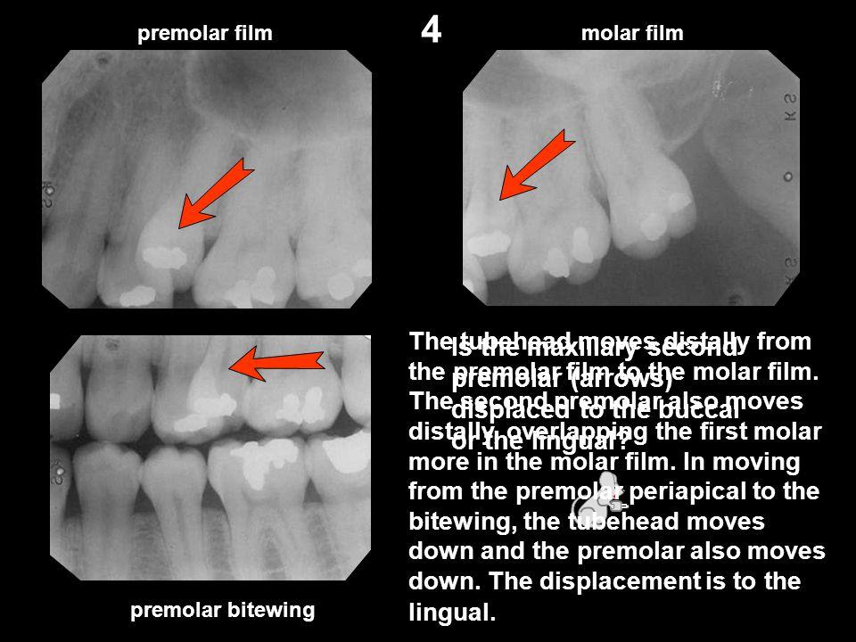 4 premolar film. molar film.
