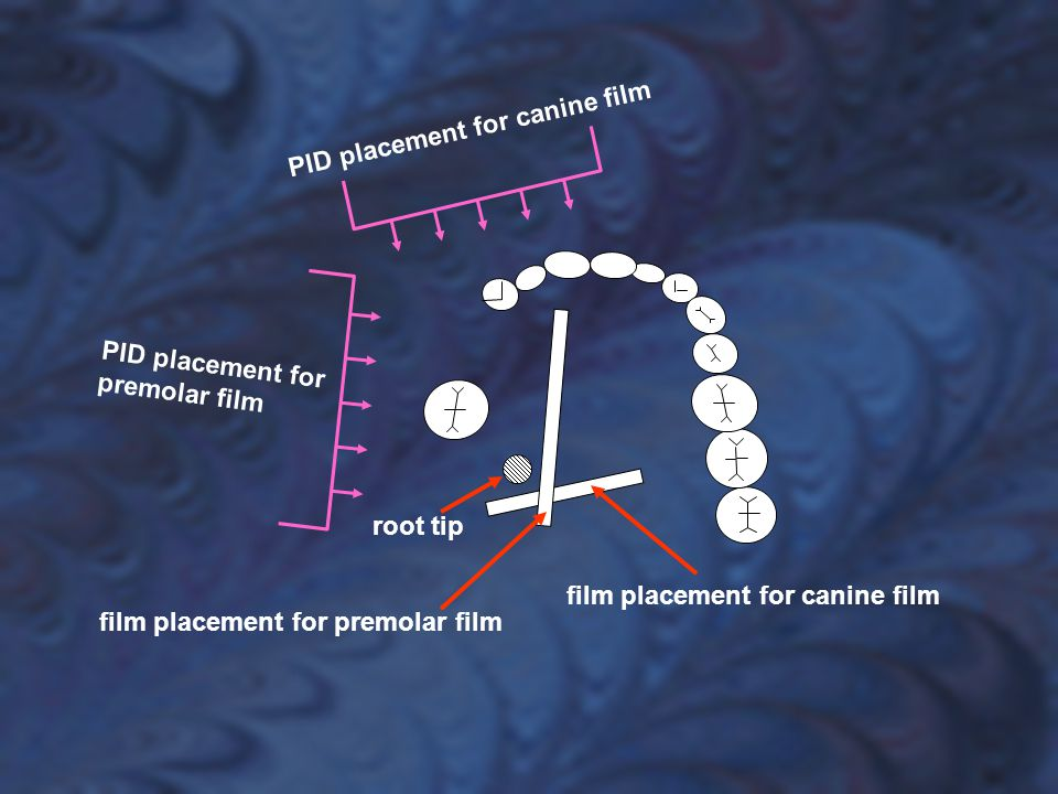 PID placement for canine film PID placement for premolar film. root tip. film placement for canine film.