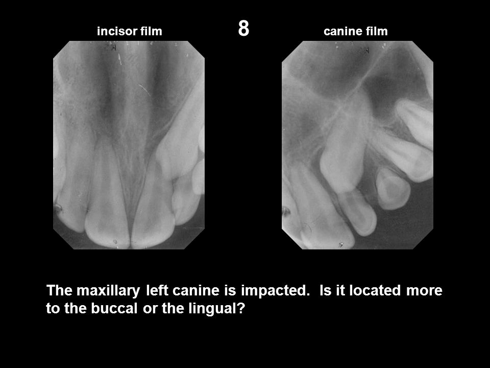 8 incisor film. canine film. The maxillary left canine is impacted.