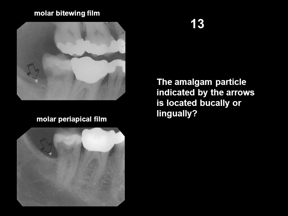 molar bitewing film 13. The amalgam particle indicated by the arrows is located bucally or lingually
