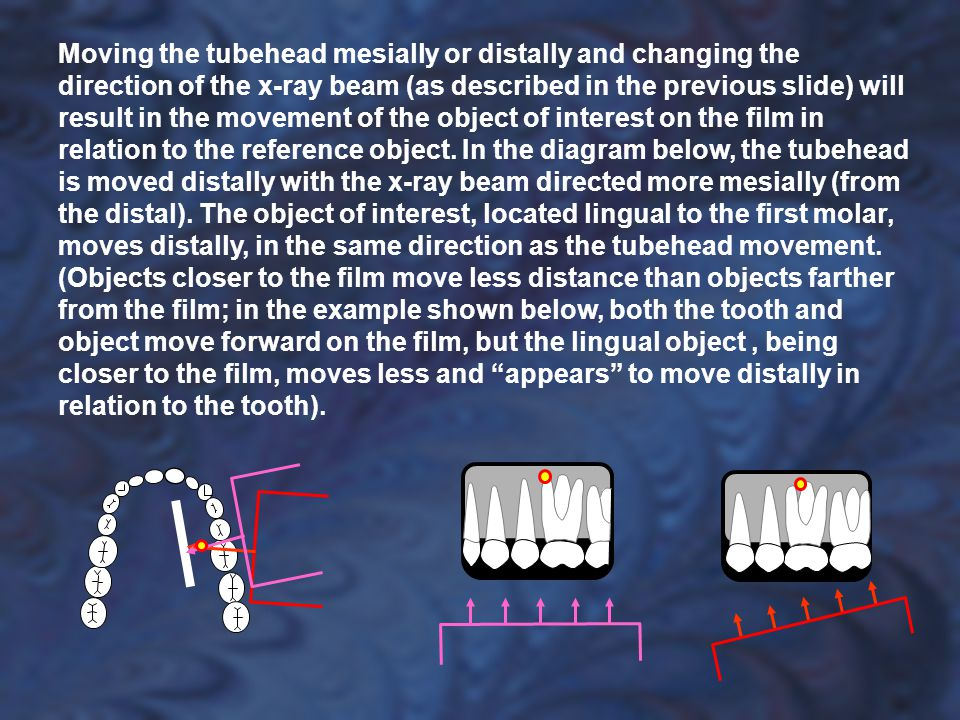 Moving the tubehead mesially or distally and changing the direction of the x-ray beam (as described in the previous slide) will result in the movement of the object of interest on the film in relation to the reference object.
