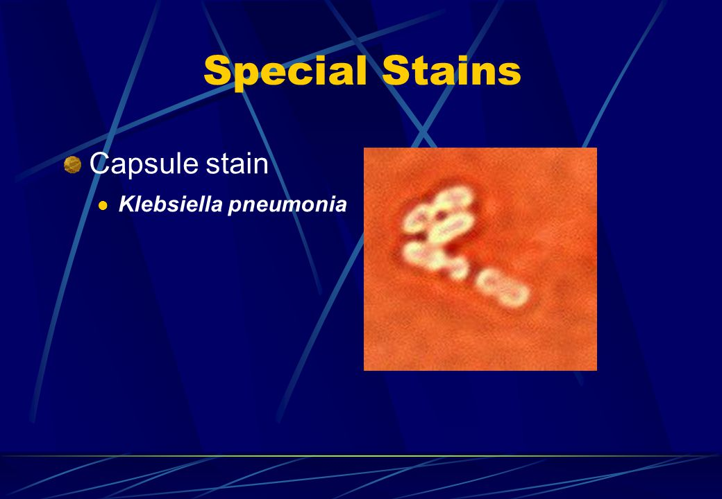 Special Stains Capsule stain Klebsiella pneumonia