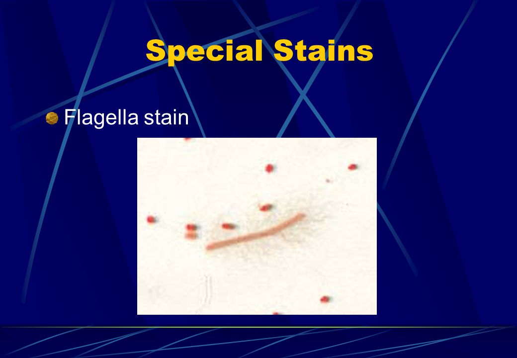 Special Stains Flagella stain