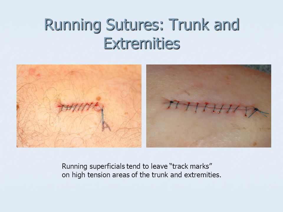 Running Sutures: Trunk and Extremities