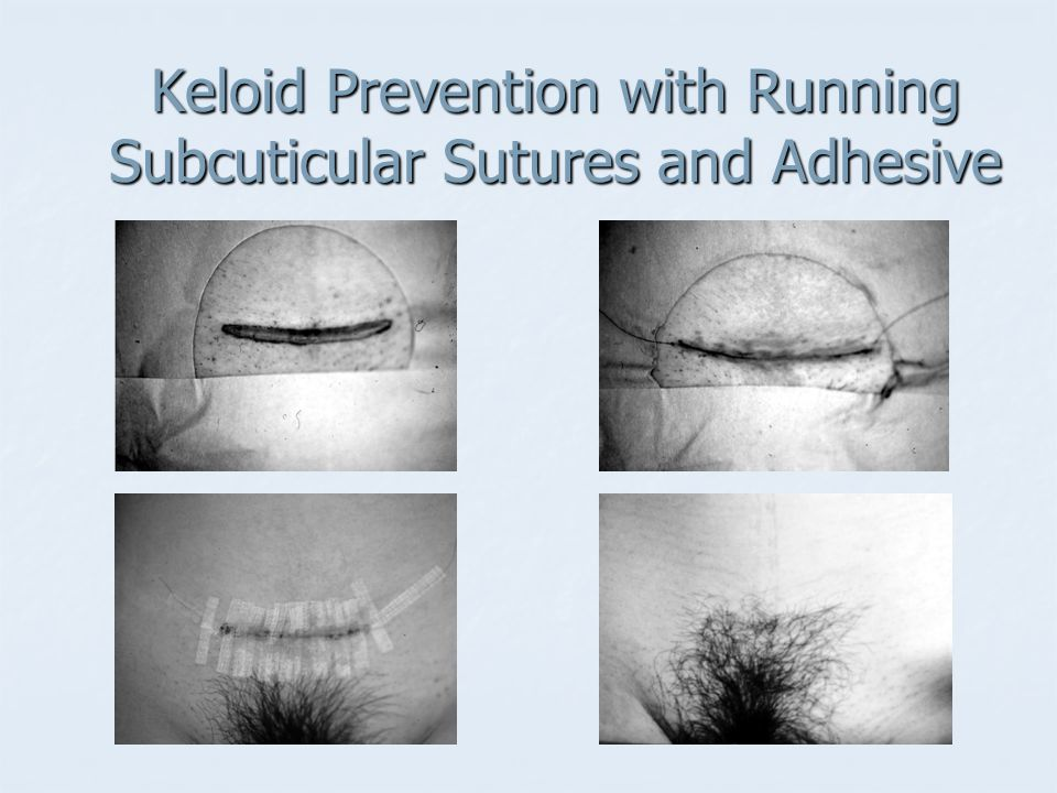 Keloid Prevention with Running Subcuticular Sutures and Adhesive