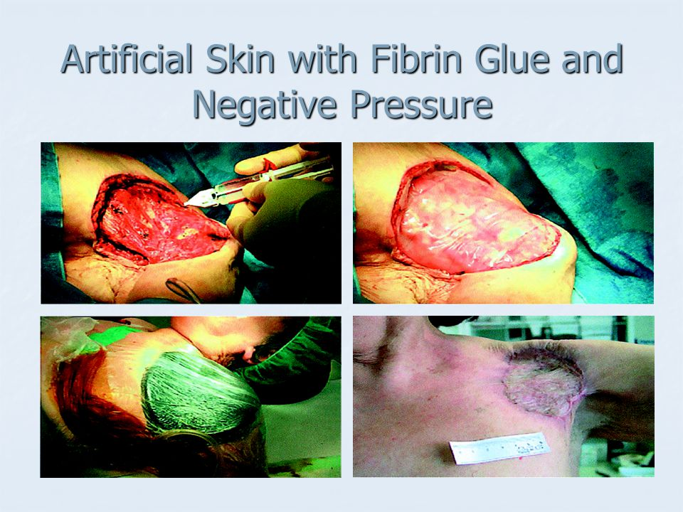 Artificial Skin with Fibrin Glue and Negative Pressure