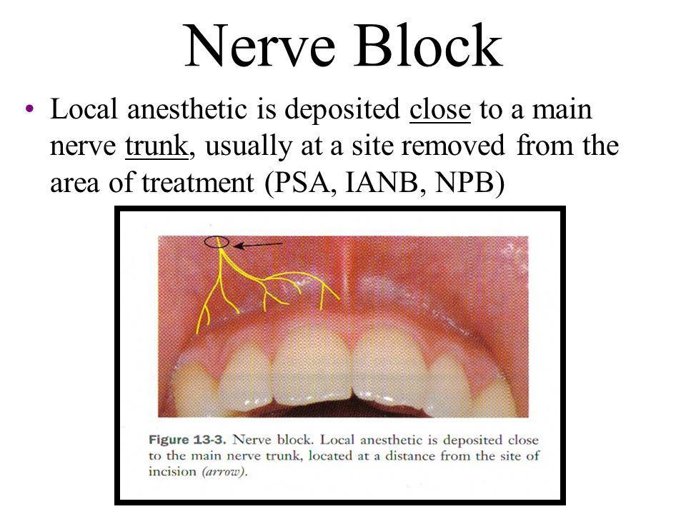 Nerve Block Local anesthetic is deposited close to a main nerve trunk, usually at a site removed from the area of treatment (PSA, IANB, NPB)