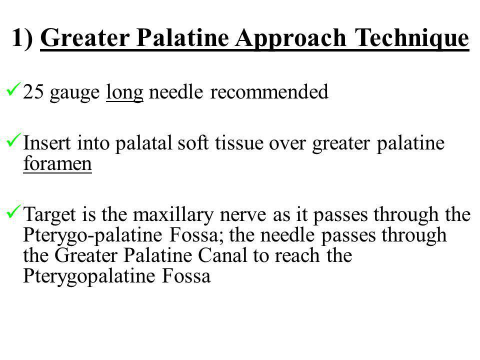 1) Greater Palatine Approach Technique