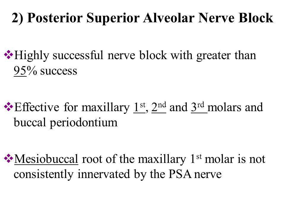 2) Posterior Superior Alveolar Nerve Block