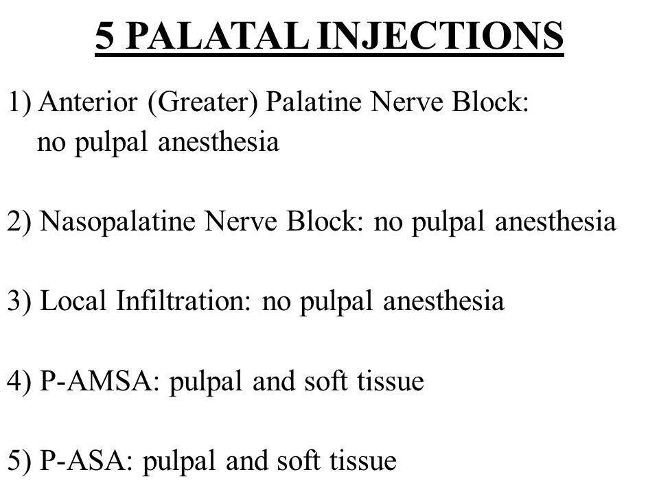 5 PALATAL INJECTIONS 1) Anterior (Greater) Palatine Nerve Block: