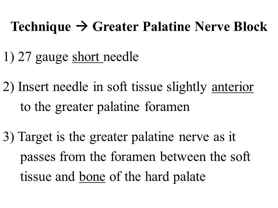 Technique  Greater Palatine Nerve Block 1) 27 gauge short needle 2) Insert needle in soft tissue slightly anterior to the greater palatine foramen 3) Target is the greater palatine nerve as it passes from the foramen between the soft tissue and bone of the hard palate