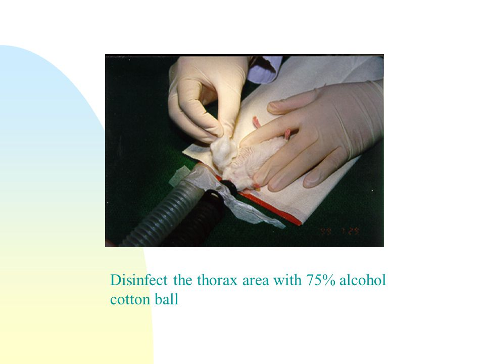Disinfect the thorax area with 75% alcohol cotton ball