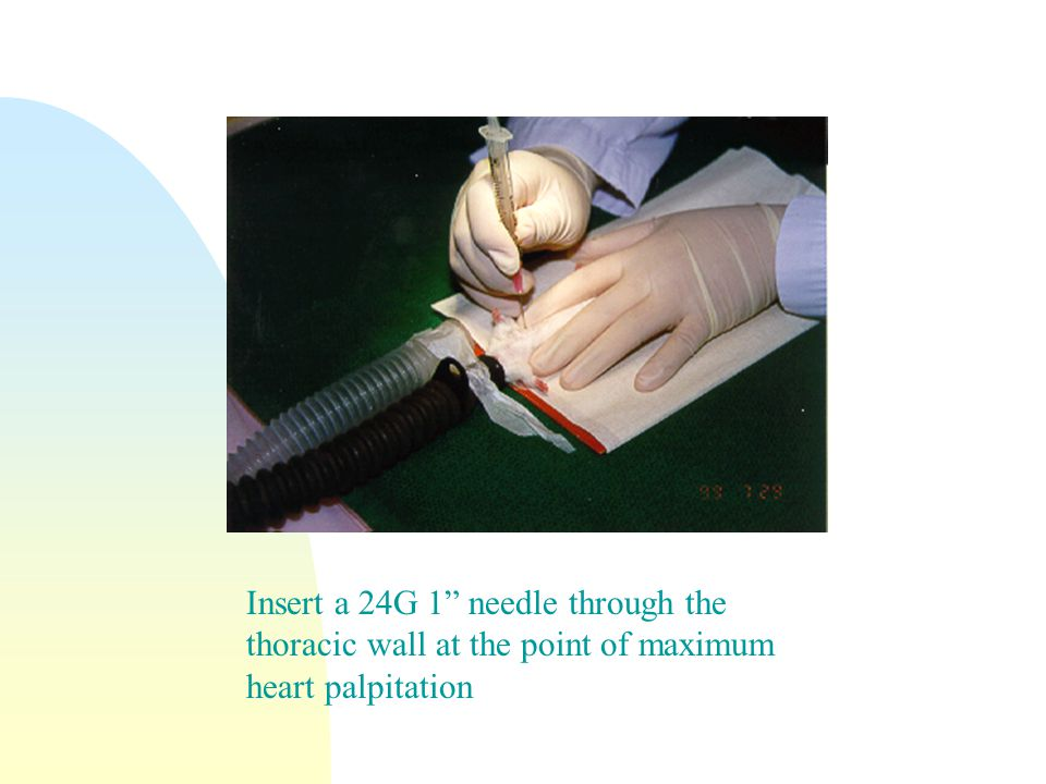 Insert a 24G 1 needle through the thoracic wall at the point of maximum heart palpitation