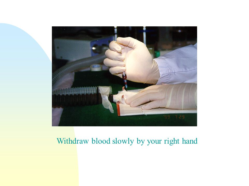 Withdraw blood slowly by your right hand