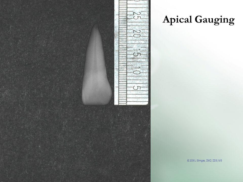Apical Gauging