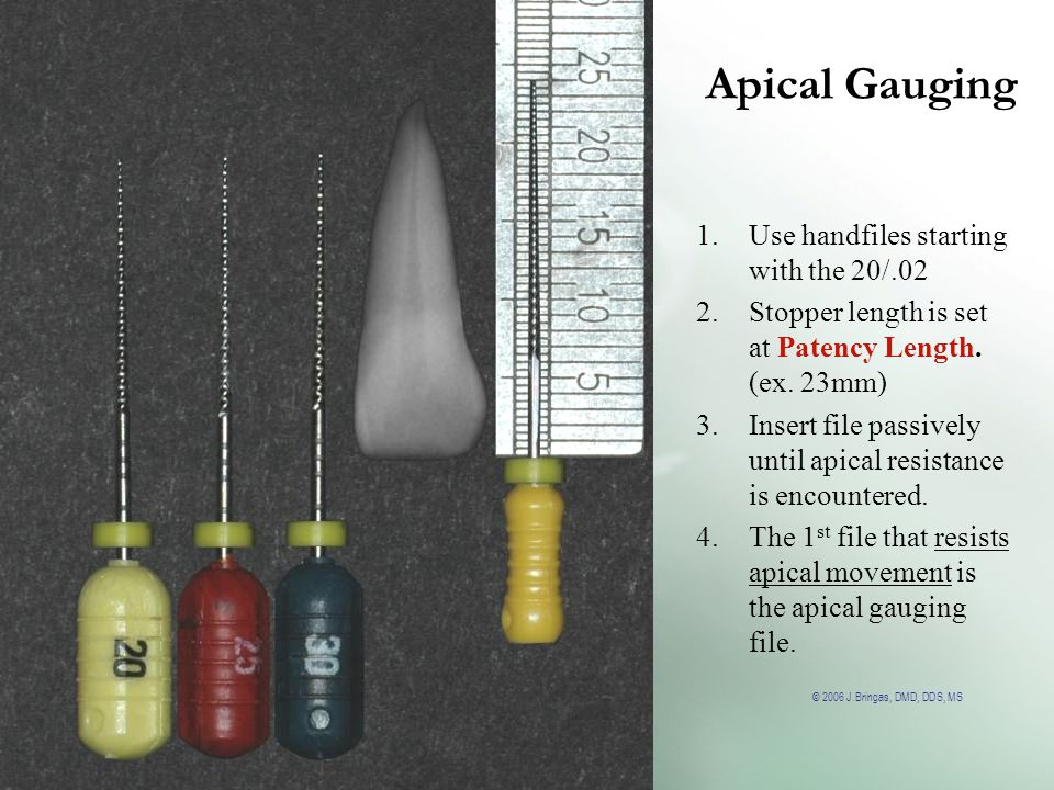 Apical Gauging Use handfiles starting with the 20/.02