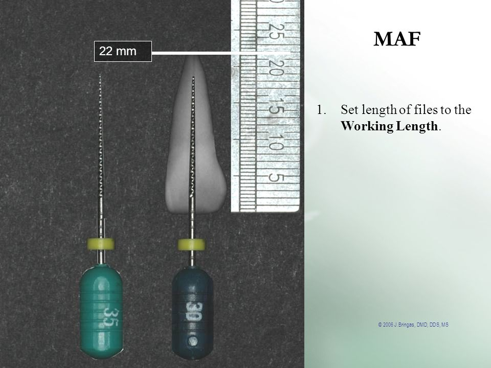 MAF 22 mm Set length of files to the Working Length.