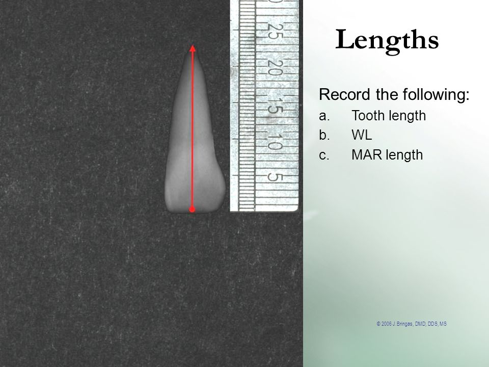 Lengths Record the following: Tooth length WL MAR length