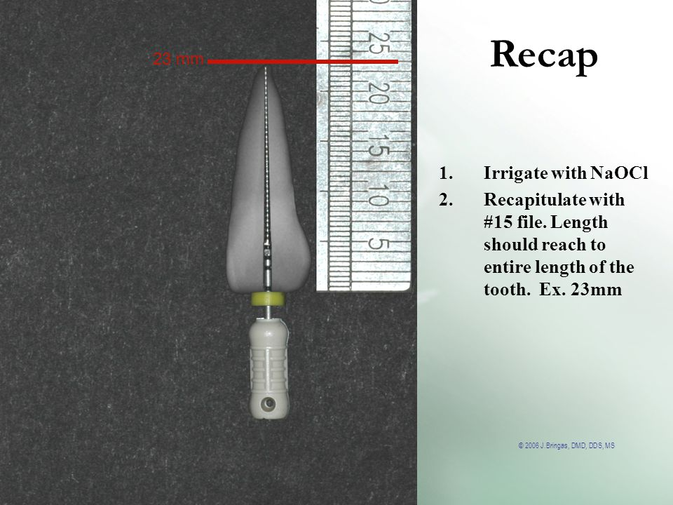 Recap Irrigate with NaOCl