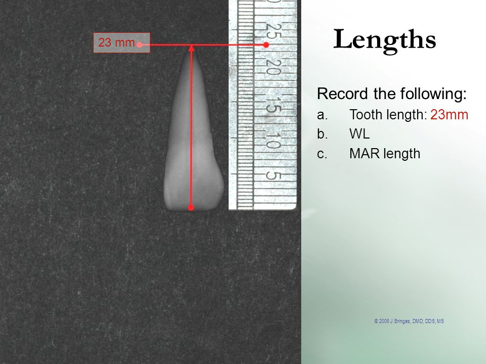Lengths 23 mm Record the following: Tooth length: 23mm WL MAR length
