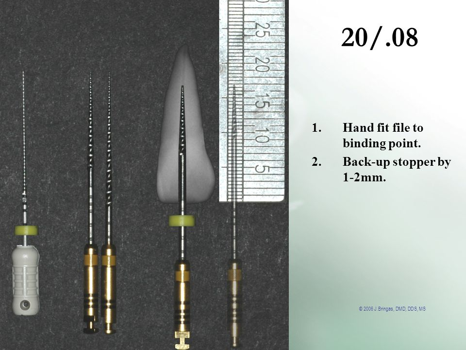 20/.08 Hand fit file to binding point. Back-up stopper by 1-2mm.