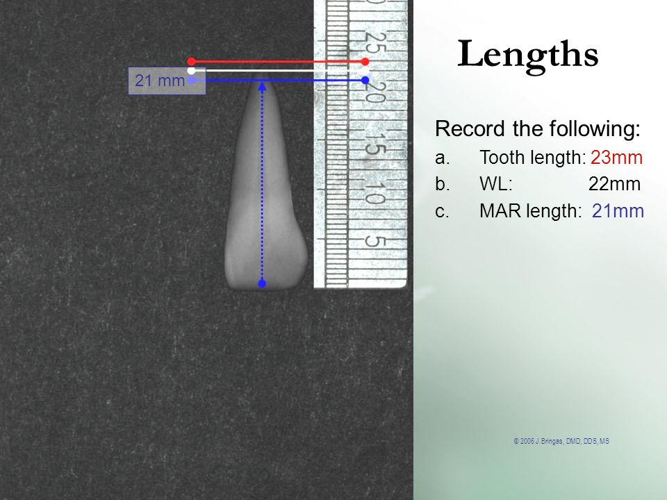 Lengths Record the following: Tooth length: 23mm WL: 22mm