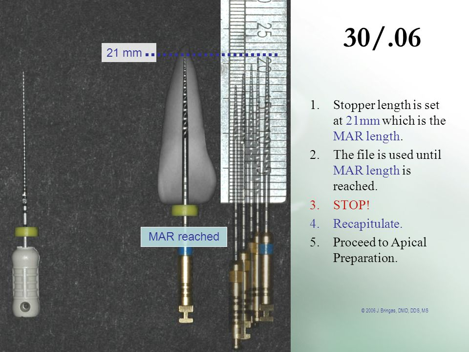 30/.06 Stopper length is set at 21mm which is the MAR length.