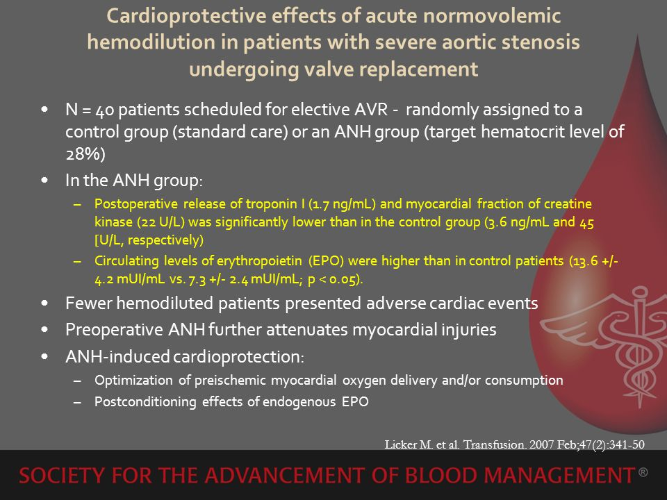 Cardioprotective effects of acute normovolemic hemodilution in patients with severe aortic stenosis undergoing valve replacement